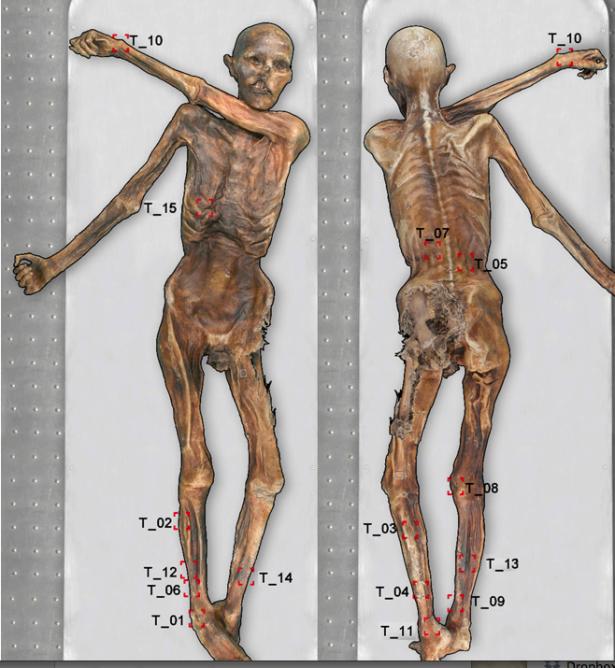 Kartierung aller Tätowierungen auf Ötzis Körper (Fotos: Marco Samadelli)