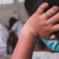Virus an Grundschulen